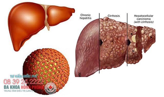 Tìm hiểu những con đường lây nhiễm viêm gan B