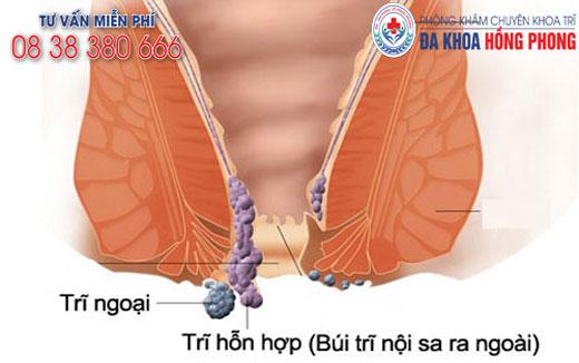 Kết quả hình ảnh cho giảm đau bệnh trĩ phongkhamdakhoahongphong.vn