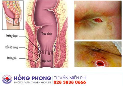 Kết quả hình ảnh cho rò hậu môn phongkhamdakhoahongphong.vn