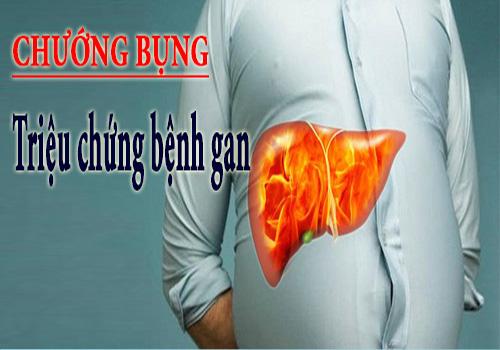 Chướng bụng là dấu hiệu cảnh báo bệnh gan