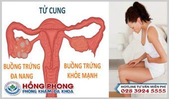 Mắc Bệnh Buồng Trứng Đa Nang Có Thai Được Không