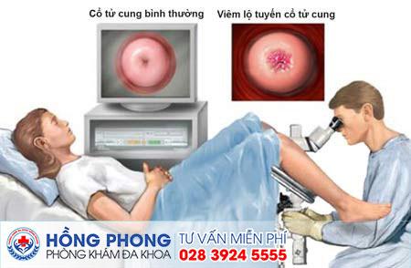 Địa chỉ khám bệnh phụ khoa ở tphcm