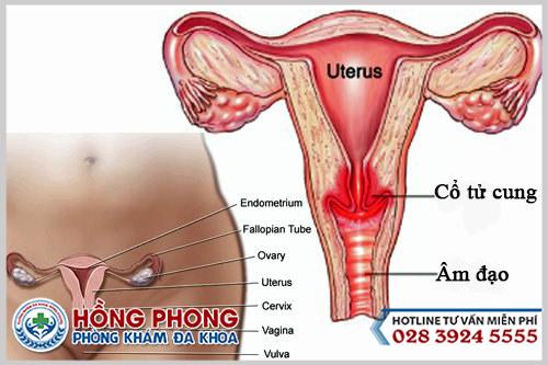 Viêm cổ tử cung