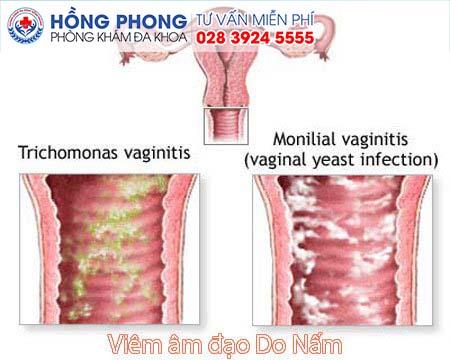 Viêm âm đạo do nấm gây ra tình trạng khí hư bất thường (Ảnh minh họa)