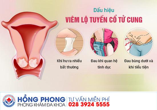 Địa chỉ điều trị viêm lộ tuyến cổ tử cung hiện nay
