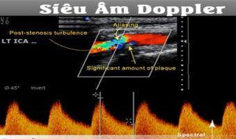 Phương Pháp Siêu Âm Doppler Chẩn Đoán Được Bệnh Gì
